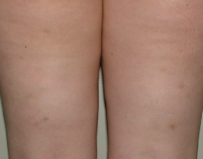 After-Mesotherapy - Cellulite