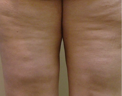 Before-Mesotherapy - Cellulite