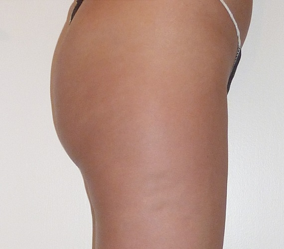 After-Mesotherapy - Buttocks