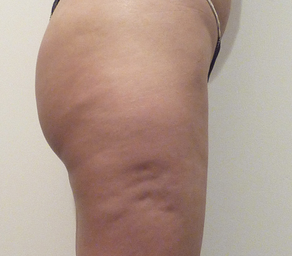 Before-Mesotherapy - Buttocks