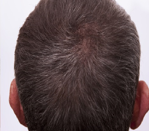After-Mesotherapy - Hair Loss