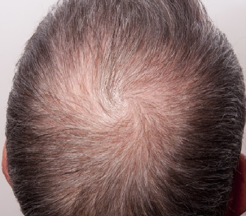 Before-Mesotherapy - Hair Loss