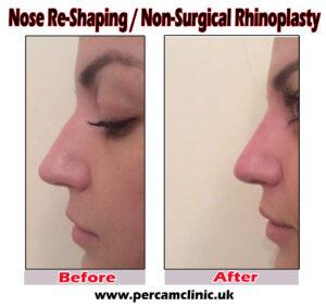 nose 4